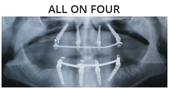 All on Four de Art&Dent es Implantología avanzada.